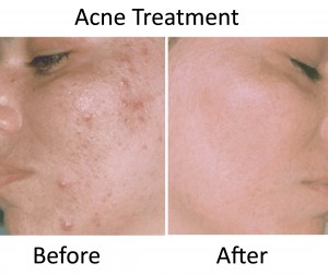 caci-acne-treatment