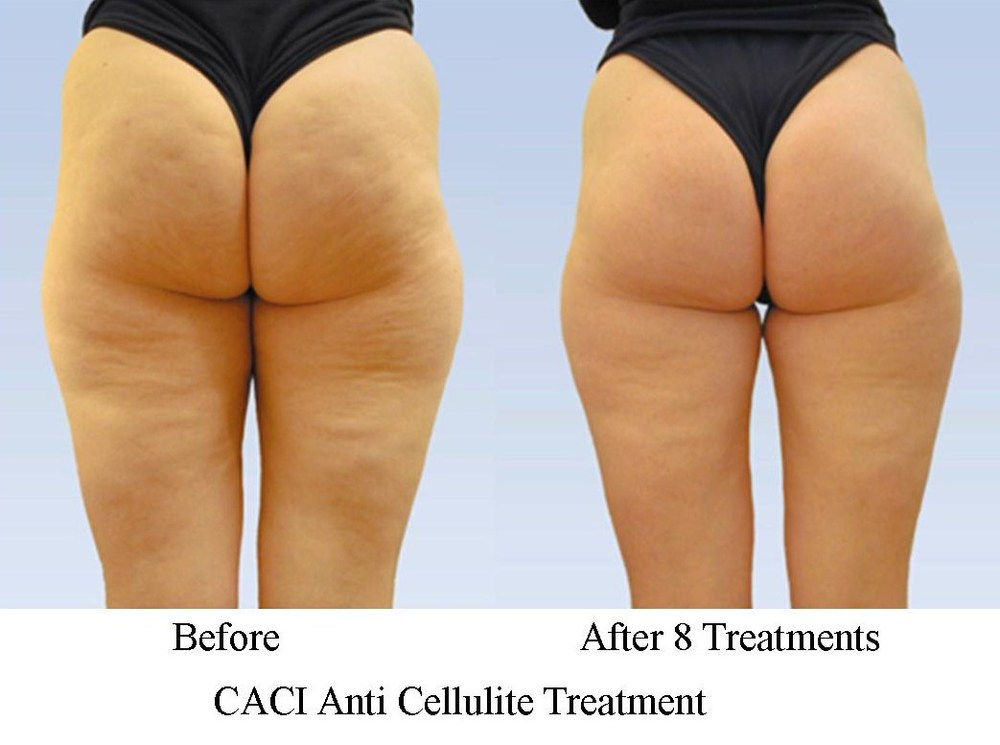 caci-anti-cellulite-treatments-in-solihull