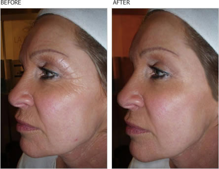 caci-wrinkle-treatment-in-solihull